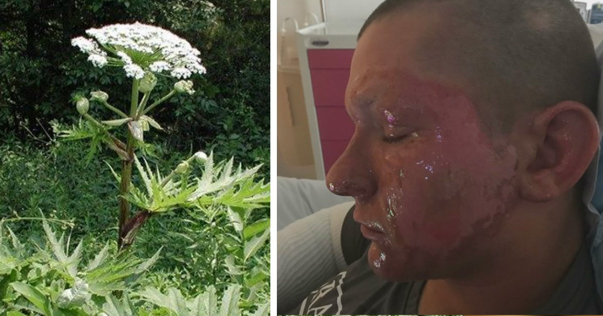 highly toxic plant called Giant Hogweed warning fb
