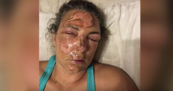 Woman Falls Face First Into Hot Grill But Survives