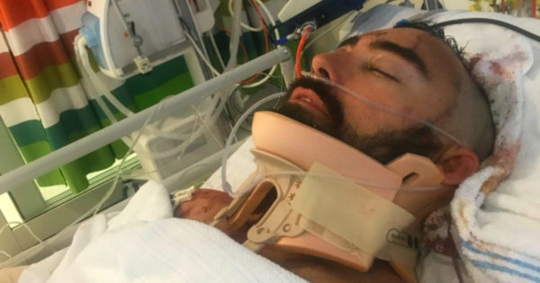 Heroic Dad Fights For Life After Diving Head First Off Balcony To Save His Son