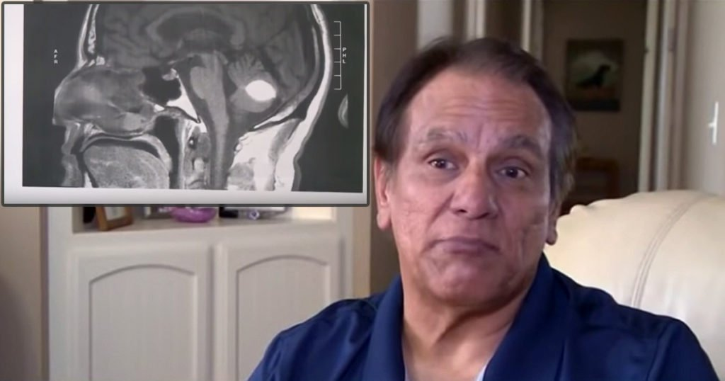 Doctors Left Baffled After Deadly Mass In Man's Brain Mysteriously Vanishes