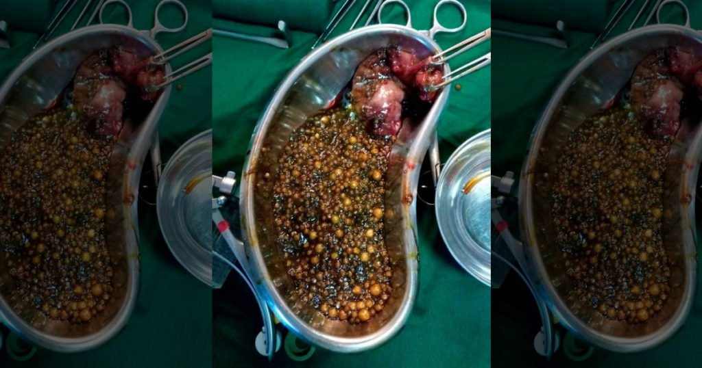 2350 gallstones removed 50-year-old woman