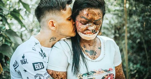 Woman with Skin Disease Knows God Sent Her True Love