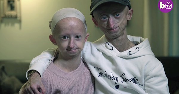 Brother and Sister with Progeria