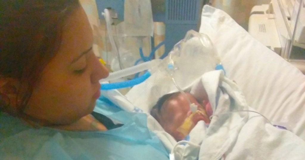 baby born with no skin ja'bari gray inspirational short story