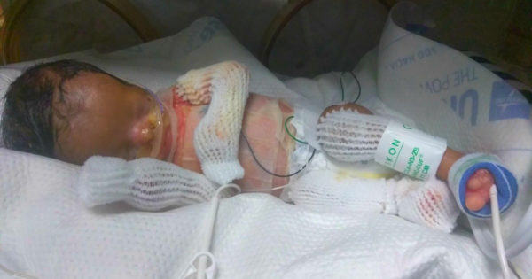Baby Born With No Skin Baffles Doctors And His Family Needs Prayer