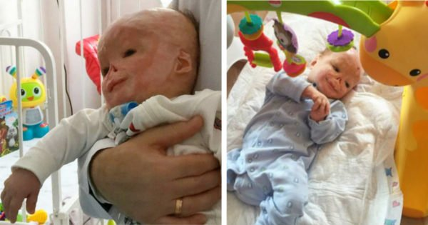 Baby In Russia Gets Abandoned By His Mother After He Suffers A Terrible Accident In The Hospital