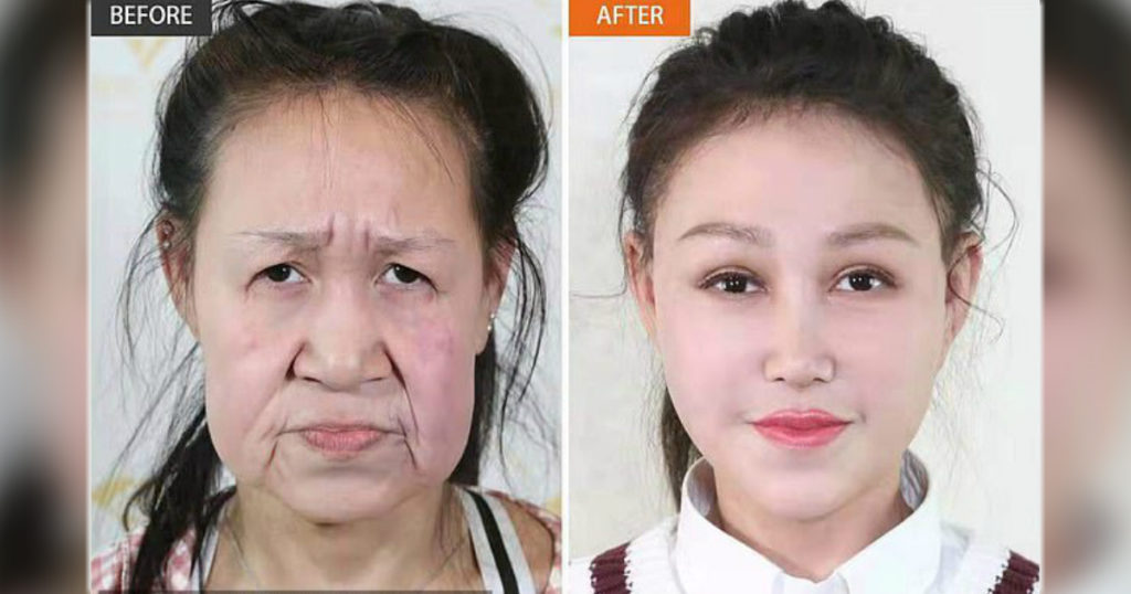 hutchinson gilford progeria Xiao Feng before and after