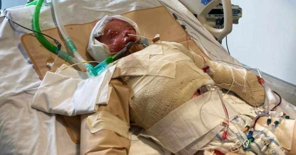 skin falls off lennon townsend story