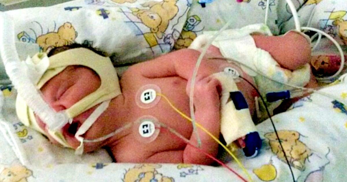 spina bifida in ultrasound